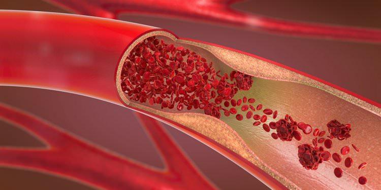 末梢動脈疾患